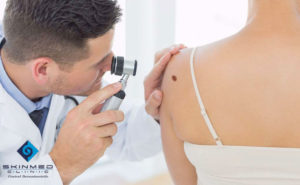 dermatoscopia - skinmed