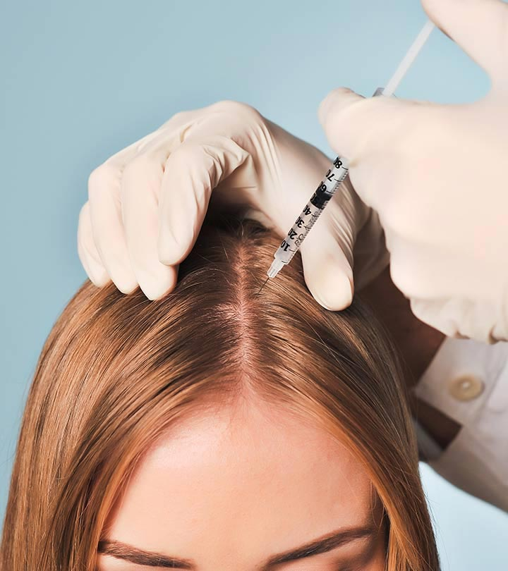 mezoterapia scalp - skinmed