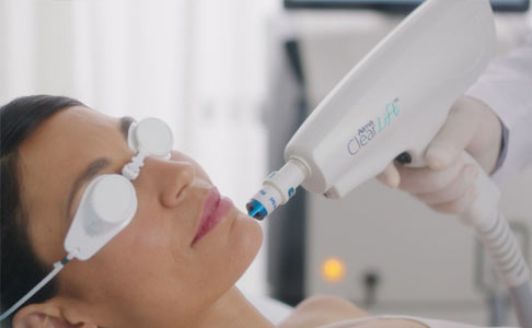 laser clearlift – skinmed clinic