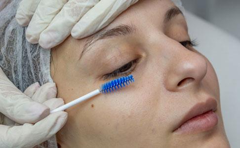 laminarea genelor - skinmed
