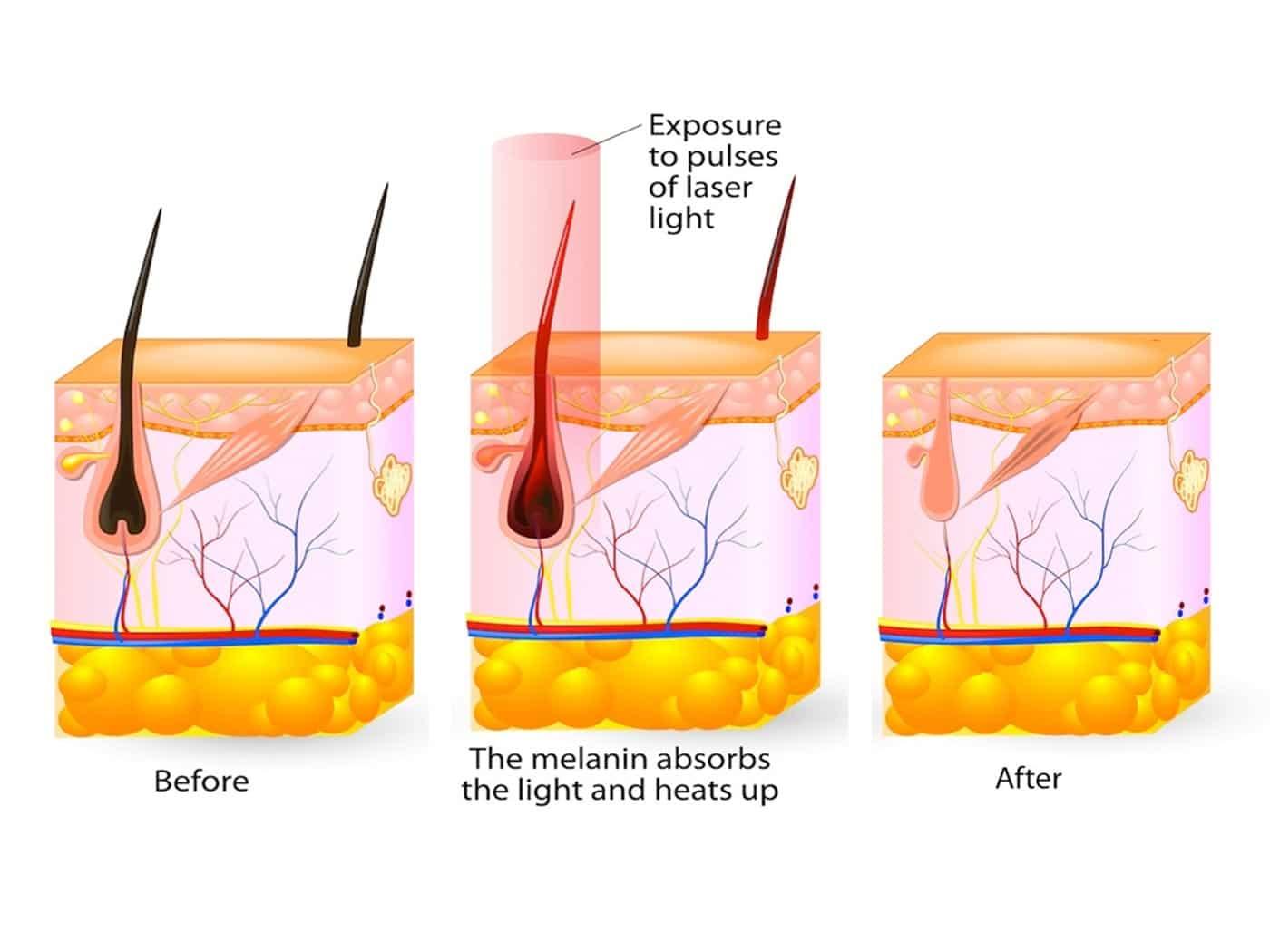 epilare definitva cu laser soprano ice titanium platinum - skinmed clinic