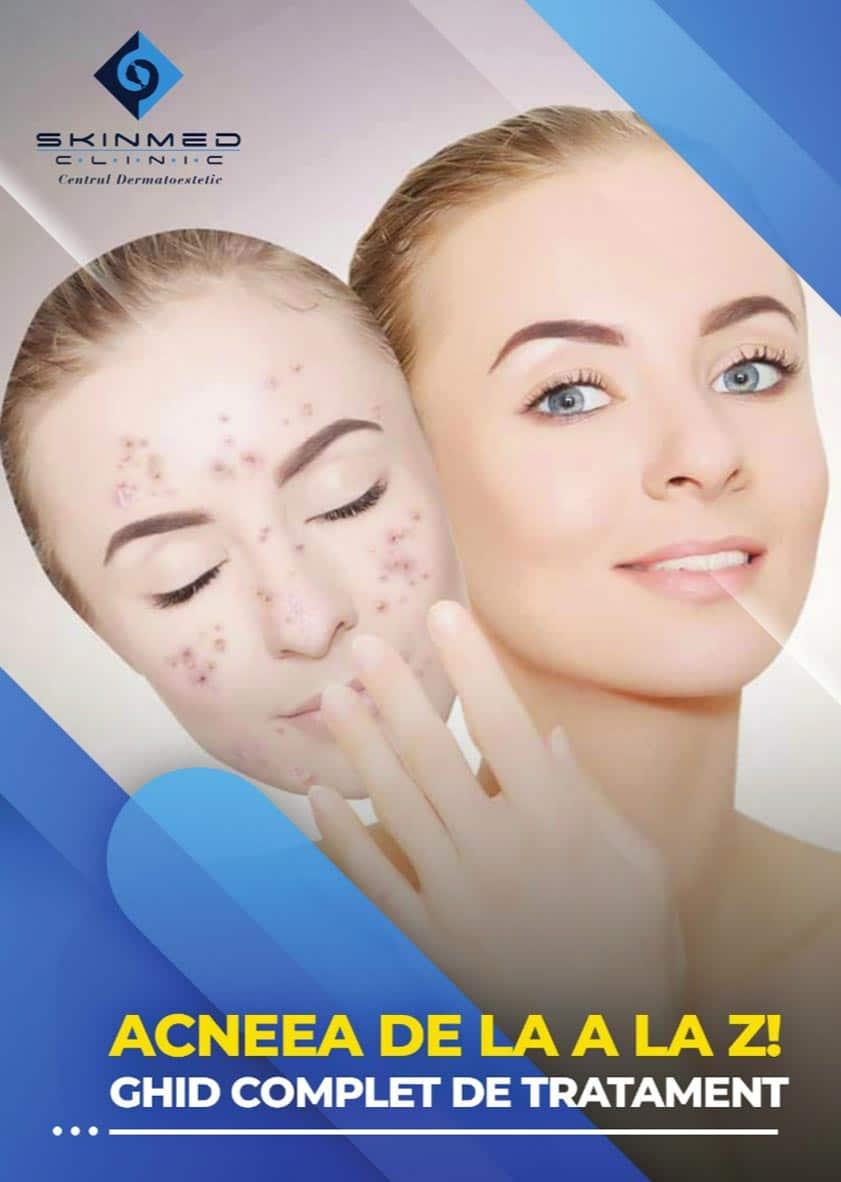 brosura ghid acnee - skinmed