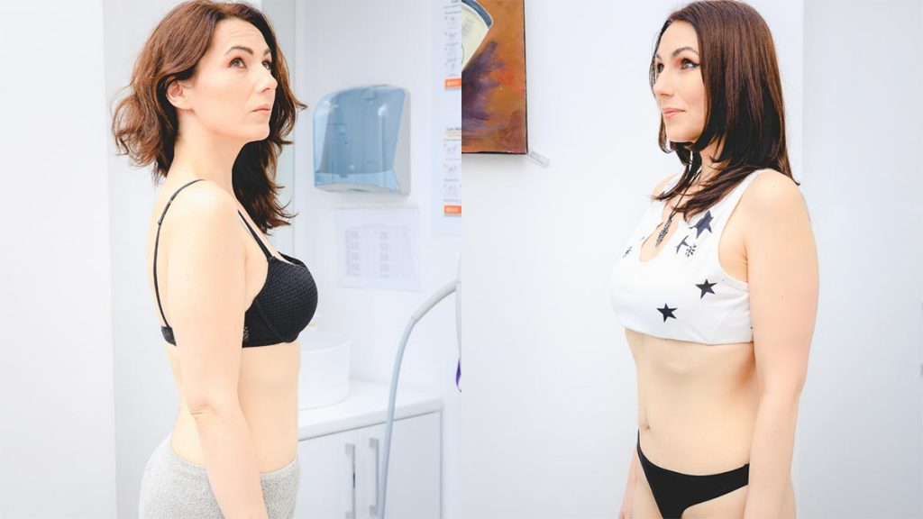 testimonial navi accent prime - skinmed clinic bucuresti